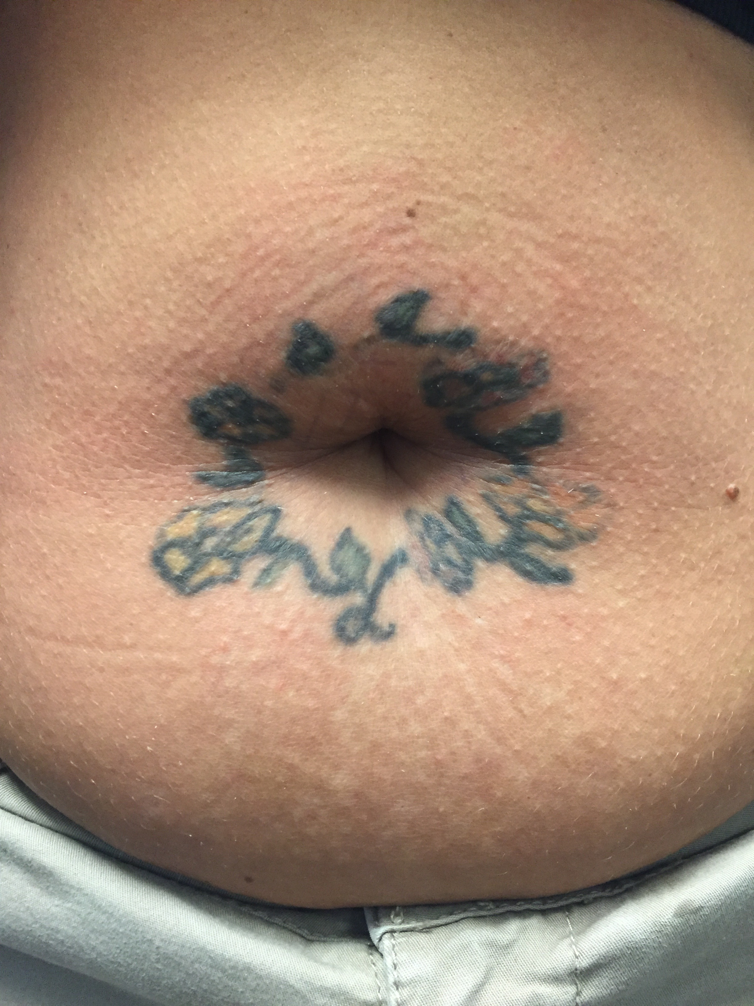 belly button before repair